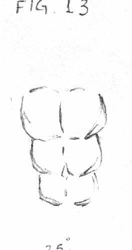 abdomen 2